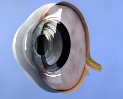 Distacco della retina e i sintomi