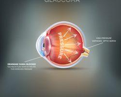 Glaucoma Milano